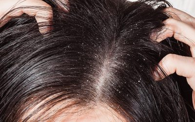 Toddler Dandruff: Symptoms and Remedies